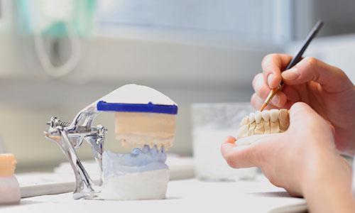Protesi-ed-Estetica-Dentale2