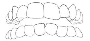 apparecchio-ai-denti-affollamento