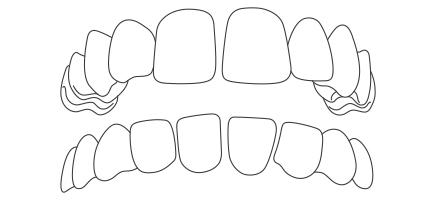 apparecchio-ai-denti-distema