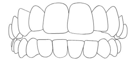 apparecchio-ai-denti-morso-aperto