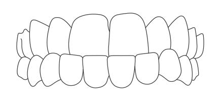 apparecchio-ai-denti-morso-inverso