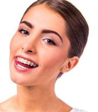 apparecchio-ai-denti